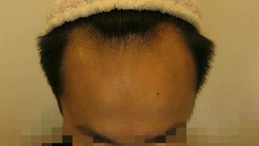 AGA治療経過1ヶ月目の写真(正面)