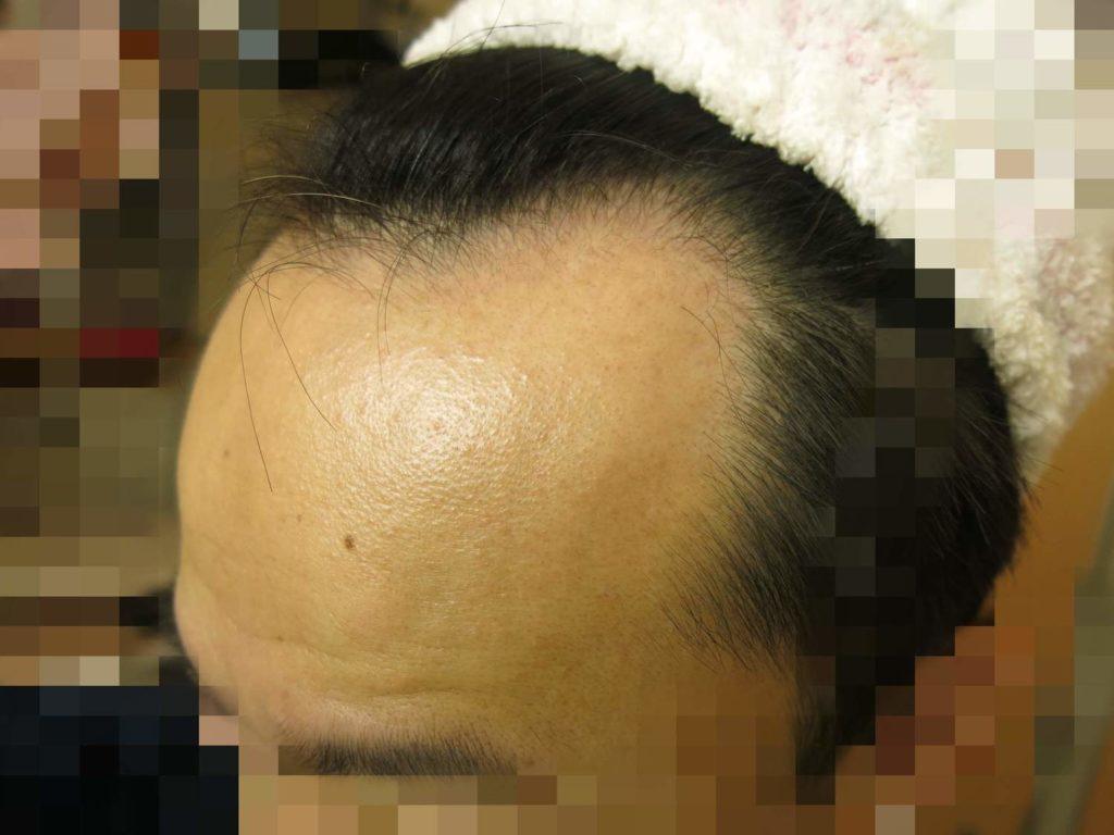AGA治療開始前のおでこ(左)