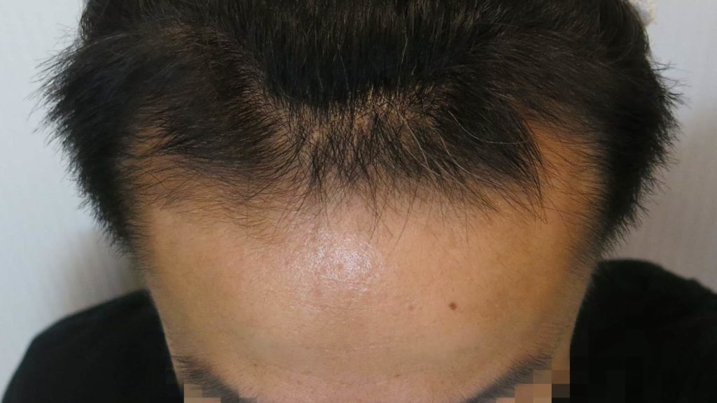 AGA治療経過4ヶ月目の写真(正面)