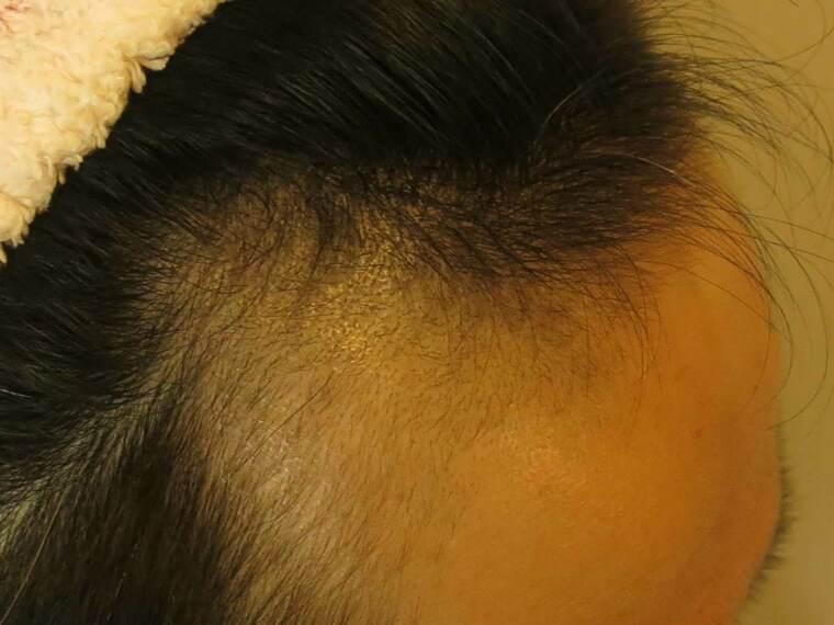 AGA治療経過2ヶ月目のアップ写真(右)