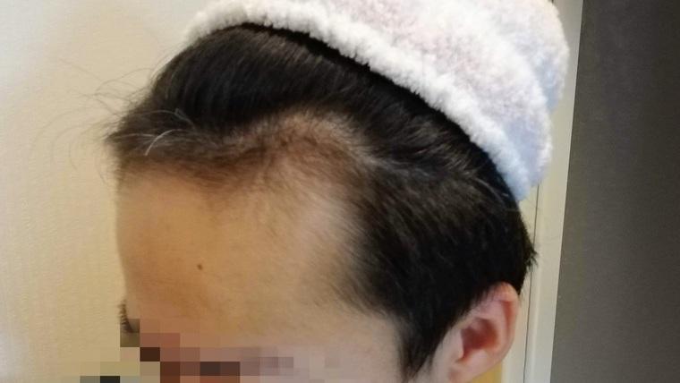 AGA治療経過9ヶ月目の写真(左)