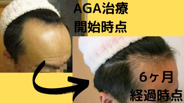 AGA治療開始前と6ヶ月の比較写真