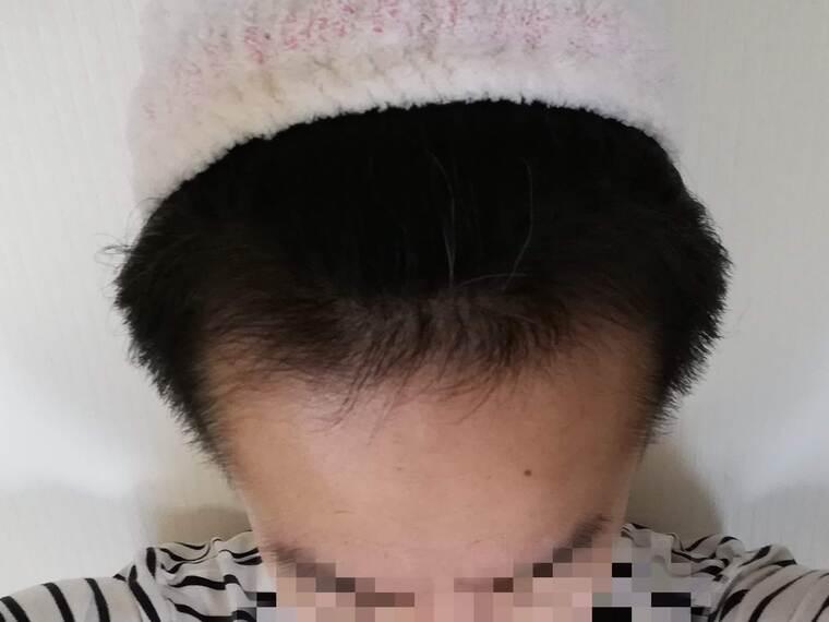 AGA治療経過12ヶ月目の写真(正面)