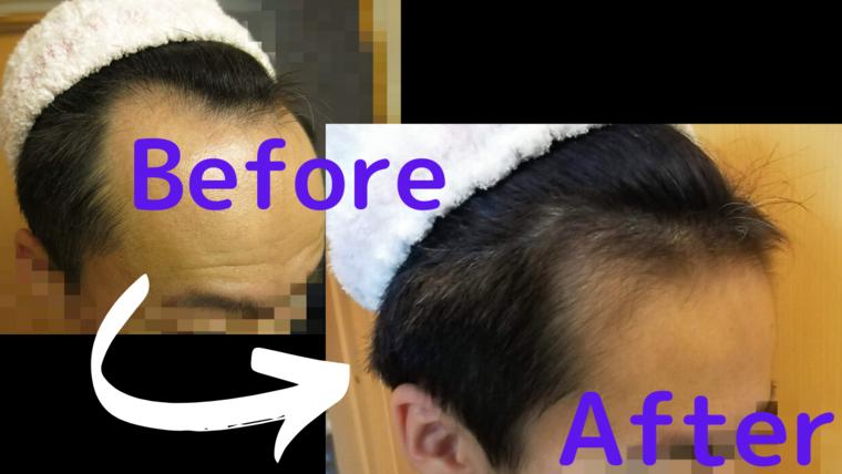 AGA治療開始前と1年後の写真